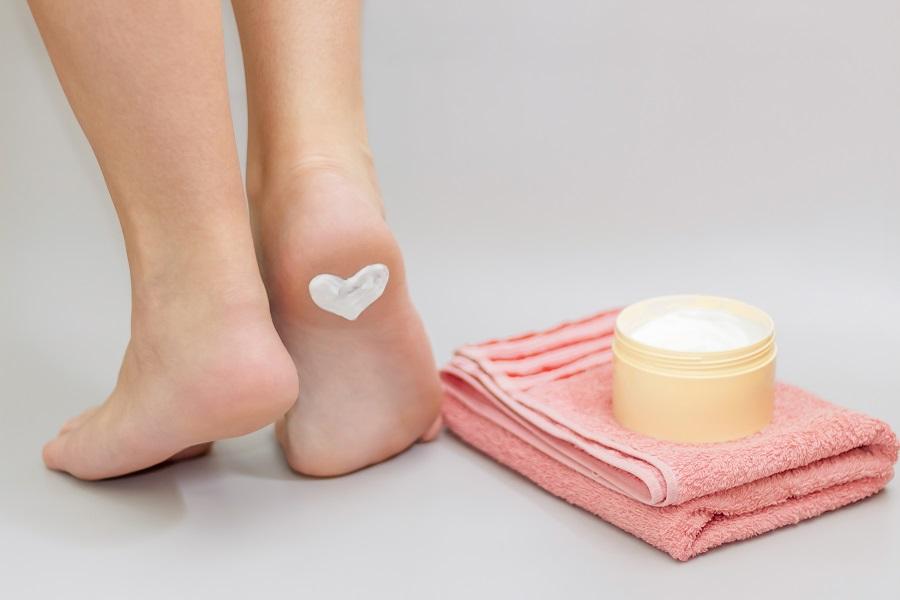 Foot Cream for Cracked Heels