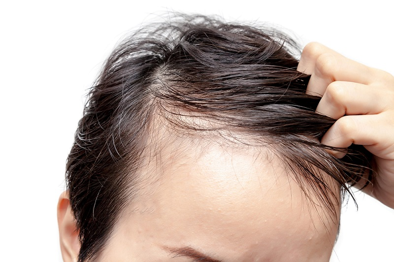 Male Thin Hair